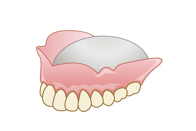 自費の金属床入れ歯