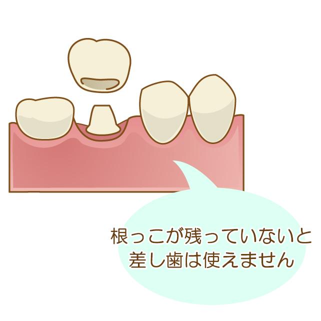 根っこが残っていないと差し歯は使えません