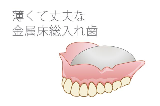 薄くて丈夫な金属床総入れ歯