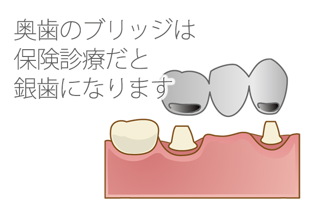保険の場合奥歯のブリッジは銀歯になる
