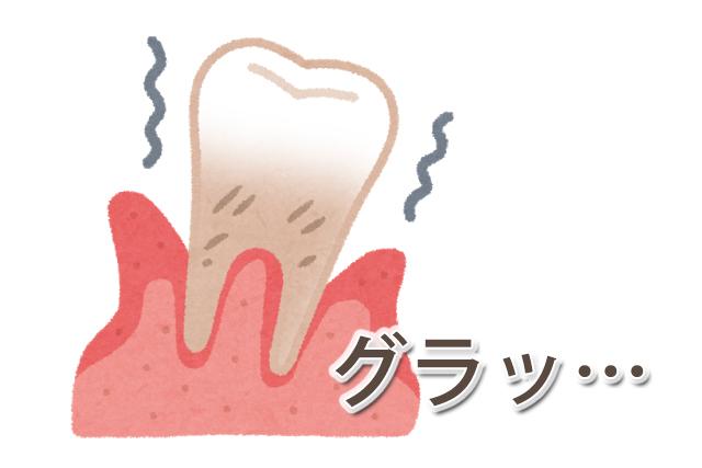 グラついている歯は無いか