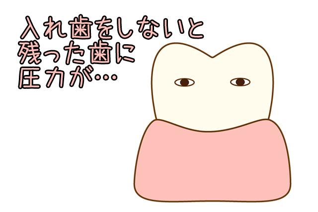 入れ歯にしないと残った歯に圧力がかかる