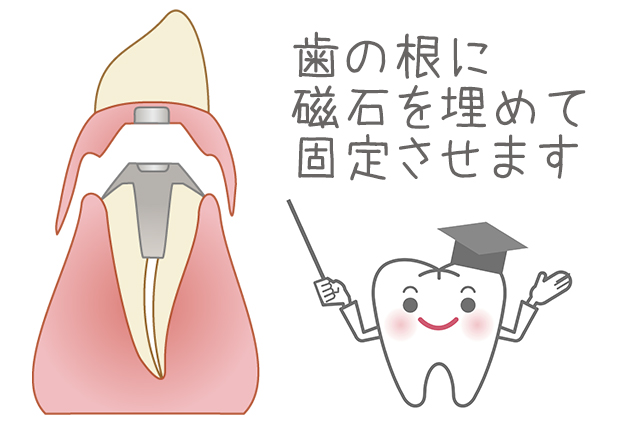 歯の根に磁石を埋めて固定