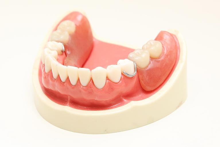 これまでの入れ歯は何が問題だったのか?
